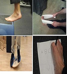 Sprained ankle - Wikipedia