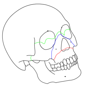le fort fracture of skull wikipedia Growing in Wisdom Tooth lefort fracture