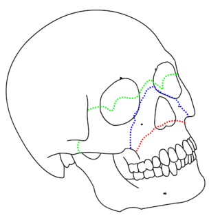 Le Fort fracture of skull
