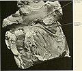 Studies in cardiac pathology (1911) (14594142080).jpg