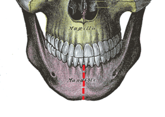 Mandibular symphysis - Anterior view of mandible, showing mandibular symphysis (red broken line)