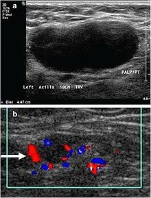 Lymphadenopathy - Wikipedia