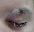 Vitiligo and poliosis.jpeg