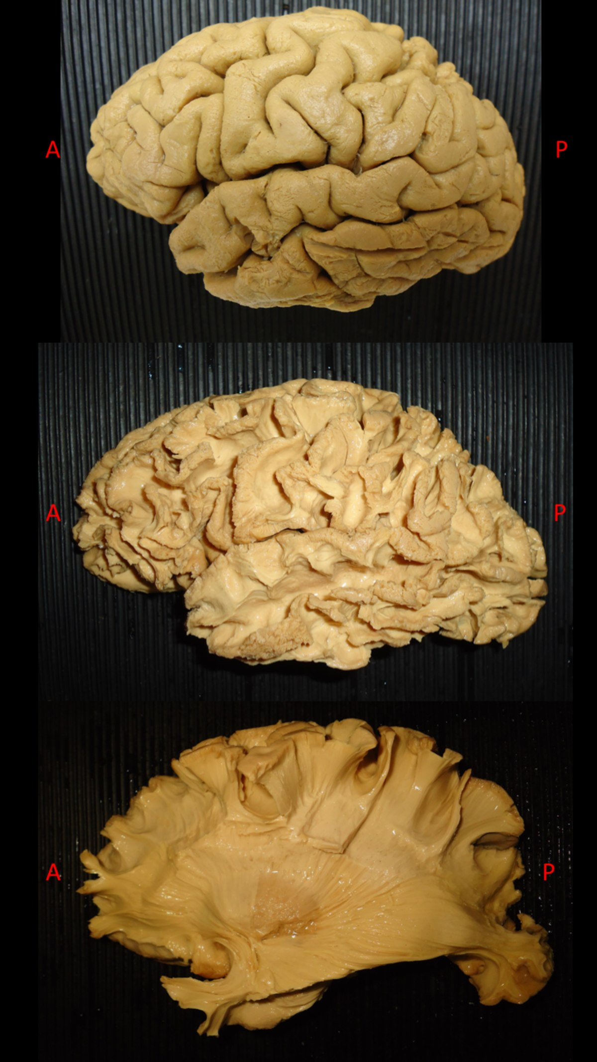 White Matter Dissection