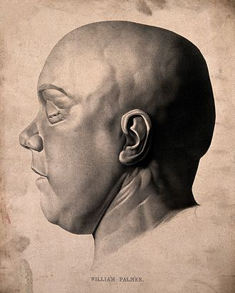 William Palmer (murderer) - Lithograph of a death mask of William Palmer