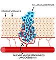 Angiogenesis.jpg