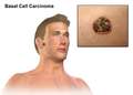 Basal Cell Carcinoma.png