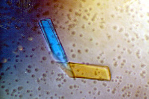 Bence Jones protein - A crystal of Bence Jones protein.