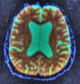 Brain MRI 103223 rgbca.png