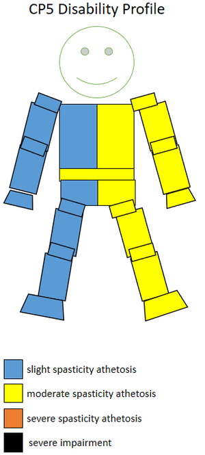 T35 (classification) - The spasticity athetosis level and location of a CP5 sportsperson.