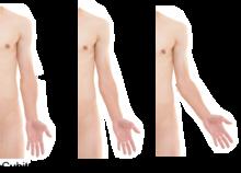 Valgus deformity - Wikipedia