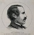 David Livingstone. Wood engraving after J. Bonomi, junior, 1 Wellcome V0003633.jpg