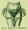 Die Frau als Hausärztin (1911) 182 Tasterzirkel zur Beckenmessung.png