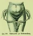 Die Frau als Hausärztin (1911) 182 Tasterzirkel zur Beckenmessung.png