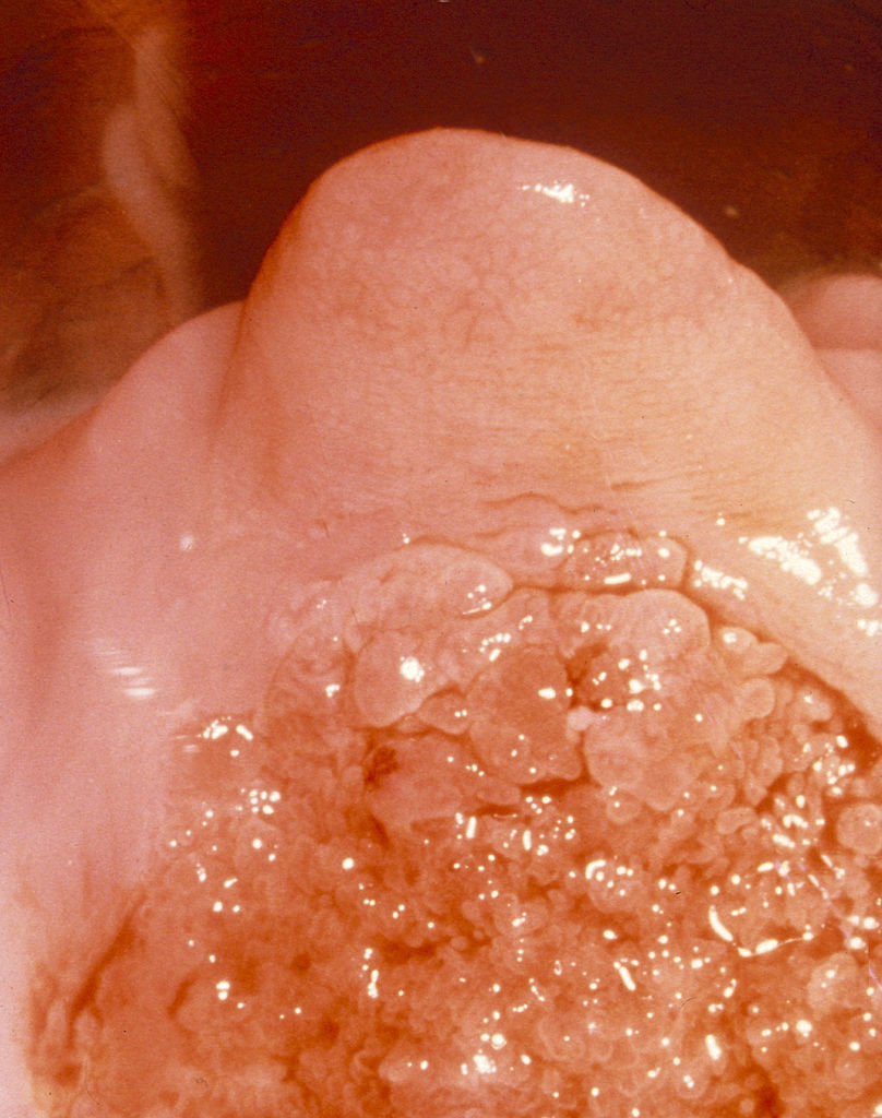 Squamous Cell Carcinoma Pictures, Images ... - Photobucket