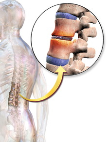 Back pain can be caused by the vertebrae compressing the intervertebral  discs.