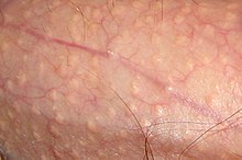 Small, raised, skin-colored lesions