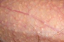 Reaccuring Hautausschlag am Penis