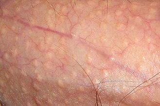 Fordyce spots - Close-up of Fordyce's spots on a penis.
