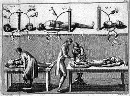 Giovanni Aldini, galvanism experiments Wellcome L0007024