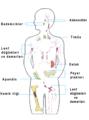 Immun-Organe-tr.png