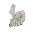 Maxillary sinus - lateral view.png