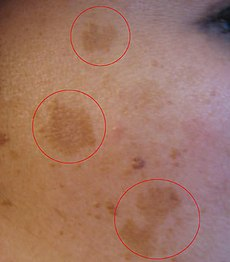 how to cure pigmentation in pregnancy