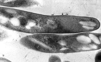 Mycobacterium - TEM micrograph of M. tuberculosis.