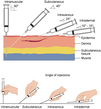 Injection (medicine) - Needle insertion angles for 4 types of injections: intramuscular, subcutaneous, intravenous and intradermal injection.