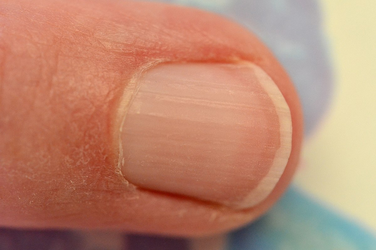 Ridges in Fingernails: Symptoms, Causes, and Treatments Black lines in fingernails pictures