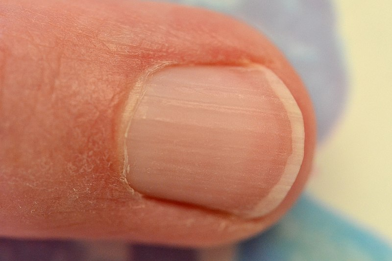 File:Ongle du doigt de la main - Fingernail hand.jpg