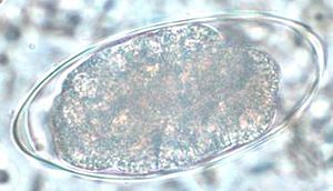 Strongylida - Egg of Trichostrongylus sp.