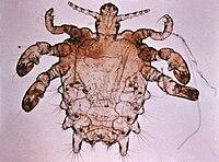Pthirus pubis - crab louse.jpg