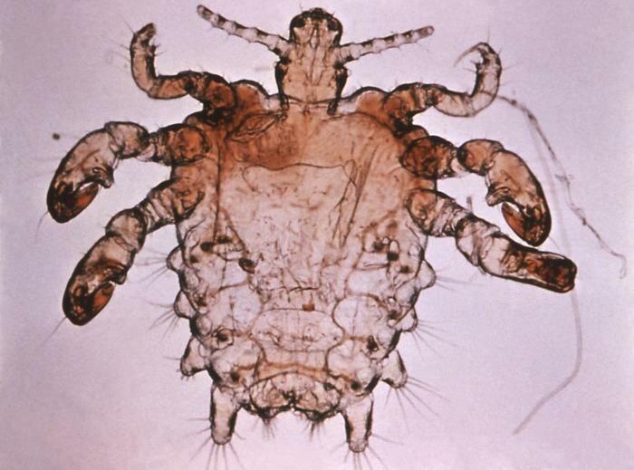 Pthirus pubis - crab louse