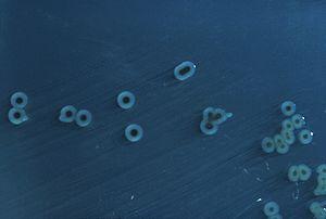 Salmonella enterica - S. enterica Typhimurium colonies on a Hektoen enteric agar plate