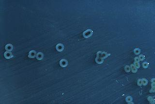 Το βακτήριο Salmonella Typhimurium αποτελεί ένα από τα πιο ανθεκτικά και παθογόνα για τον άνθρωπο
