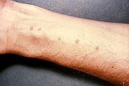 schistosomiasis klachten)