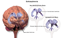 schizophrenia a splitting of the mind essay Schizophrenia, also known as the splitting of the mind, is a mental disorder characterized by disintegration of thought process and of emotional responsiveness.