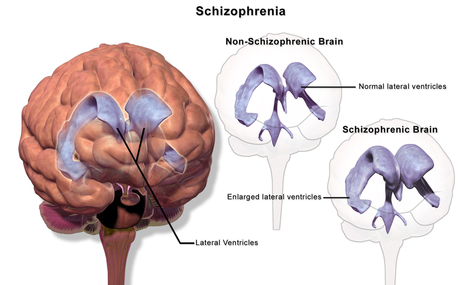 Schizophrenia (Brain)