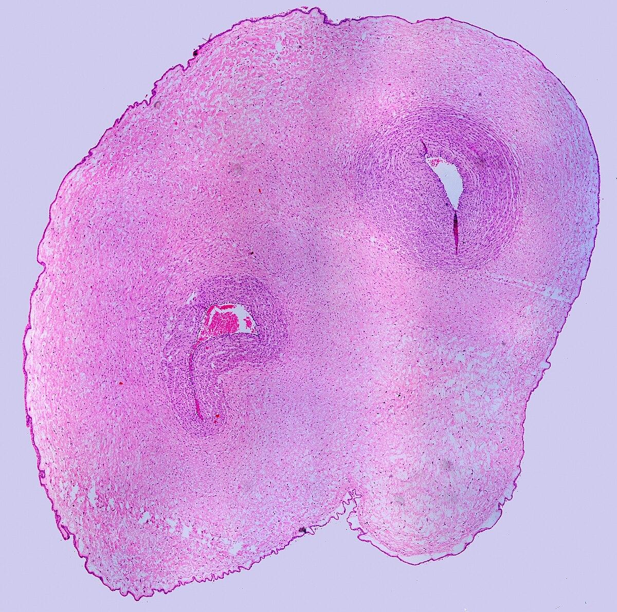 Single Umbilical Artery Wikipedia