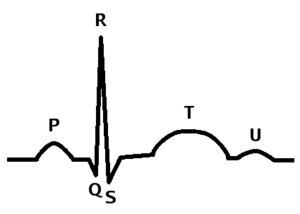 Cardiac cycle - The parts of a QRS complex. Ventricular systole begins at the QRS, Atrial systole begins at P