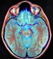 Brain MRI 112445 rgbca.png