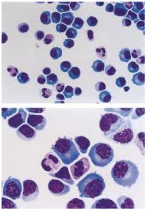 CSF pleocytosis with lymphocytic predominance in abnormal CSF smears.png