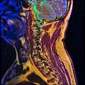 Cervical spine MRI T1FSE T2frFSE STIR 10.jpg