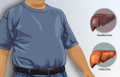 Depiction of a man suffering from fatty liver.png