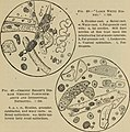 Essentials of laboratory diagnosis; designed for students and practitioners (1915) (14766315972).jpg