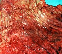 Gastritis erosiva.2278.jpg