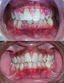 Gingivitis before and after-2.jpg