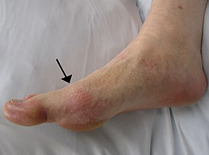 side view of a foot showing a red patch of skin over the joint at the base of the largest toe