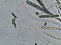 Hypoxylon fuscum asci, Gladde kogelzwam sporenzakjes.jpg